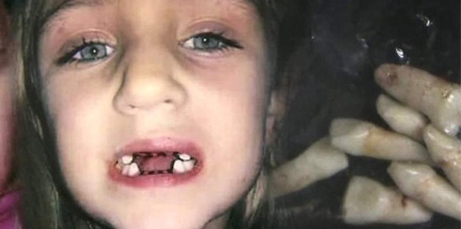 imagenes fuertes Violacion Policias colombianos violan a nina de 13 anos target=