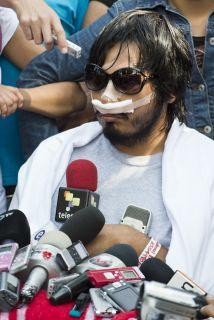 Uriel Sandoval Díaz, joven que perdió un ojo durante los disturbios del...