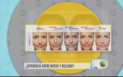 Diferencia entre el uso de botox y el relleno