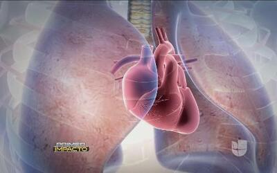 La hipertensión pulmonar una peligrosa enfermedad si nos es tratada a ti...