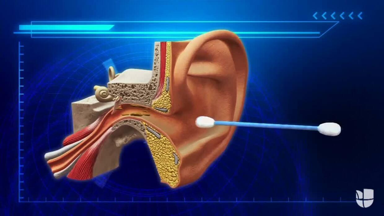 Médicos estadounidenses sugieren no usar hisopos para limpiar la cera de...