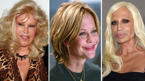¡Estás famosas resultaron víctimas del botox y una v...