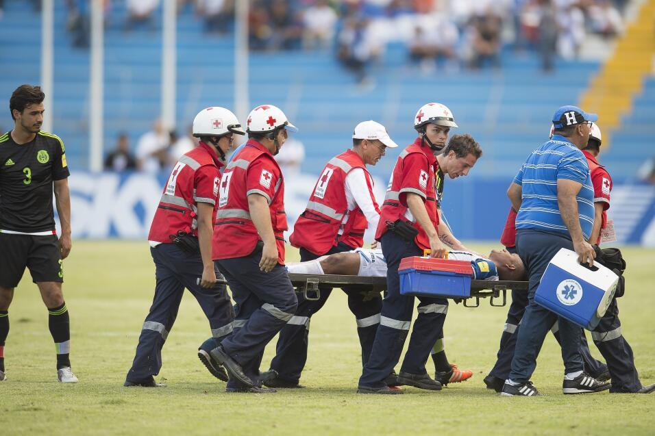Horrible fractura de Garrido ante el Tri