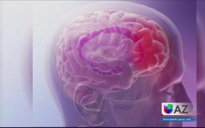 ¿Qué efectos genera un beso en el cerebro?