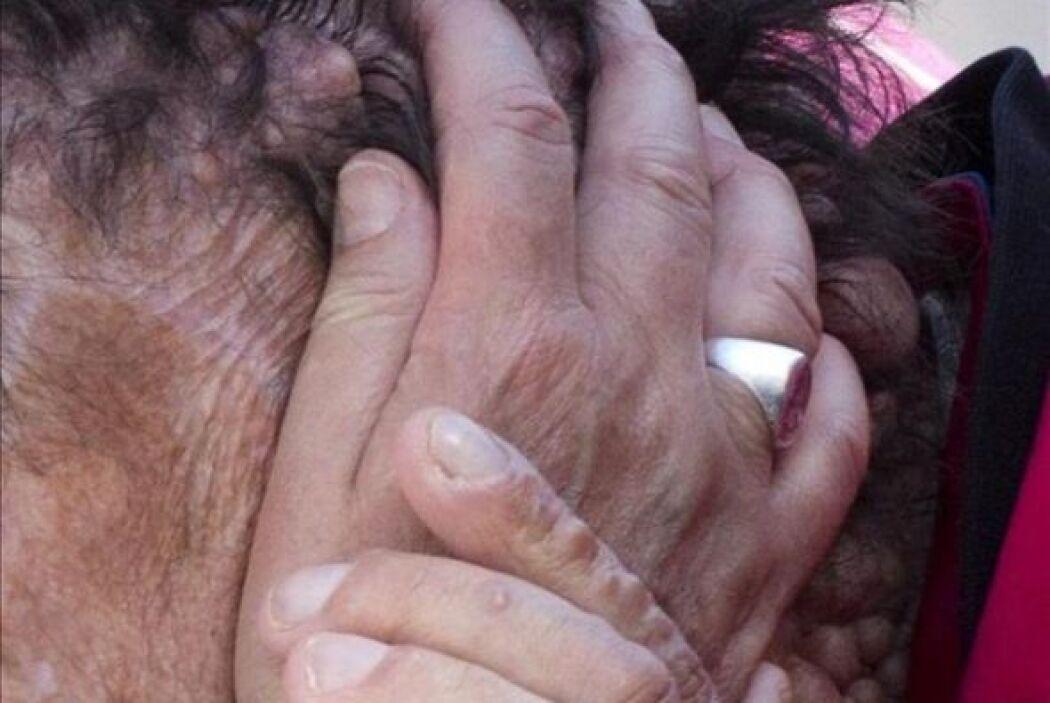 Vinicio Riva, quien padece una rara enfermedad, es el hombre cuyo abrazo...