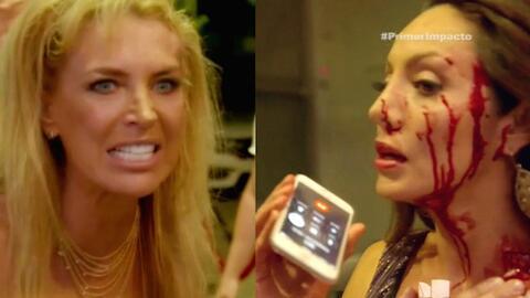 Sandra Vidal puso una demanda a quien la golpeó y le dejó marcas en la cara