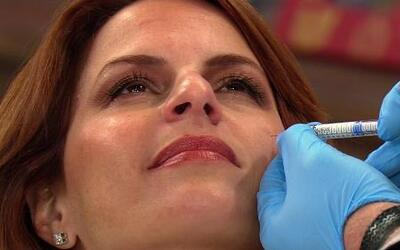 Refresca tu rostro con estos tratamientos estéticos sin bisturí