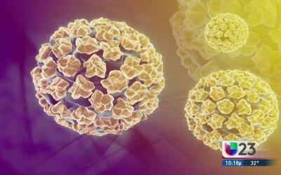 Virus del 'Papiloma Humano'
