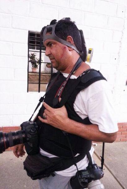 La prensa también ha sido blanco de los disparos de perdigones y balas d...