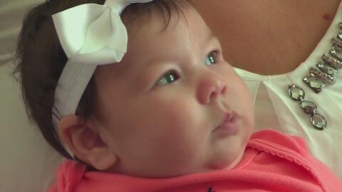 La bebé de Florida que nació con secuelas del zika