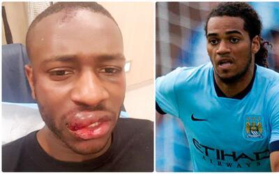Defensa del Manchester City participa en una pelea y le pega una patada...