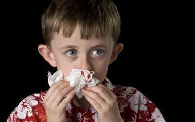 Existen muchos mitos acerca del sangrado nasal, del mismo modo abundan r...