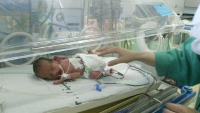 Una joven afgana dio a luz a sextillizos.