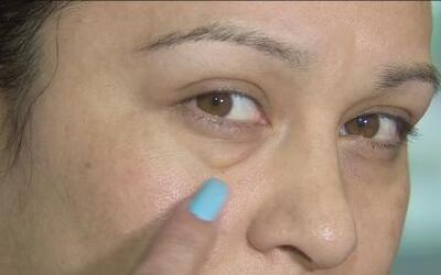 Nuevo tratamiento cosmético promete poner fin a las bolsas en los ojos