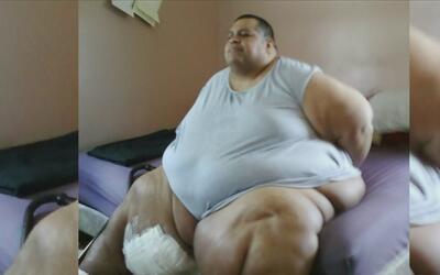 Este hombre diagnosticado con obesidad mórbida ha perdido al menos 500 l...