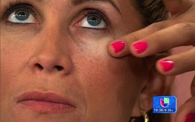 ¿Cómo combatir la ojeras?