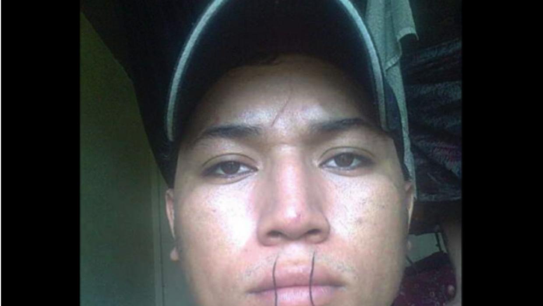 El recluso Jairo Urbina se cosió los labios en protesta por los abusos d...