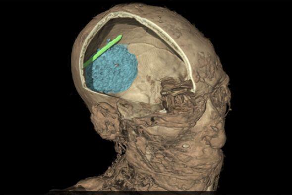 Esta imagen muestra la calavera de un hombre adulto momificado cuyo nomb...
