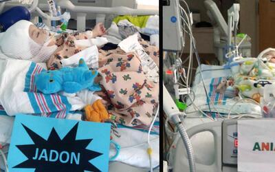 Jadon y Anias McDonald se recuperan en la unidad de cuidado intensivo pa...