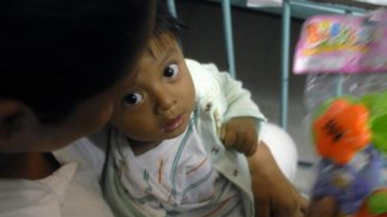 Un virus se ha cobrado la vida de al menos seis niños en una comunidad r...