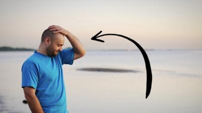 La calvicie es una de las peores cosas que le pueden pasar a un hombre,...