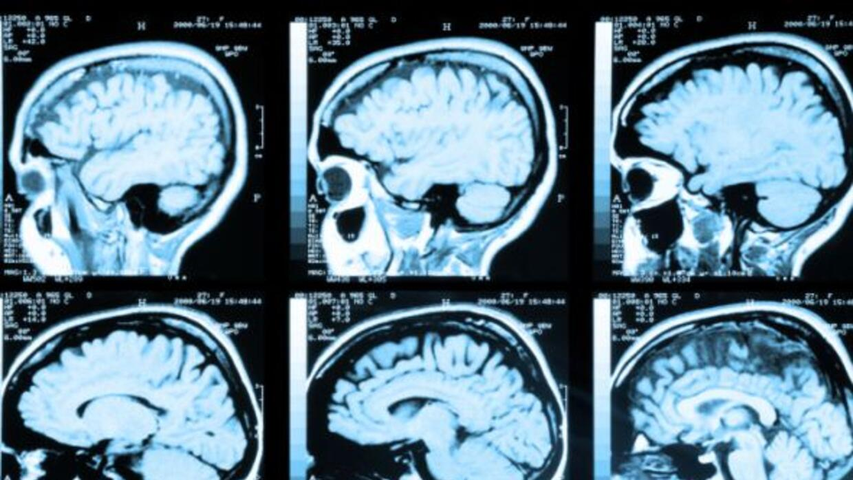 Esta nueva tecnología hará obsoleta la forma en la que se mira el cerebr...