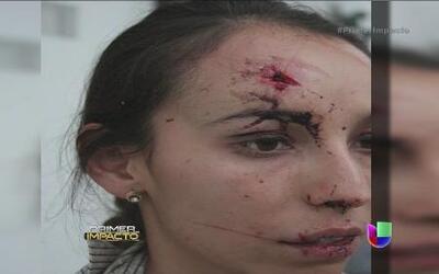 Periodista es brutalmente golpeada en México