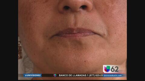 Víctima de la violencia en México narra su testimonio