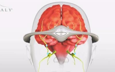 Innovador dispositivo promete quitar la migraña