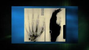 Doctor especializado en la cirugía de extracción de implantes extraterre...