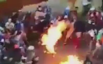 Joven resultó gravemente herido en Venezuela cuando le prendieron fuego...