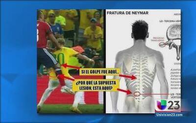 ¿Qué es una lesión en la tercera vertebra?