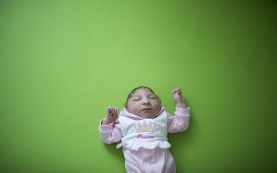 Sophia, de dos semanas, antes de su terapia en el hospital Pedro I en Ca...