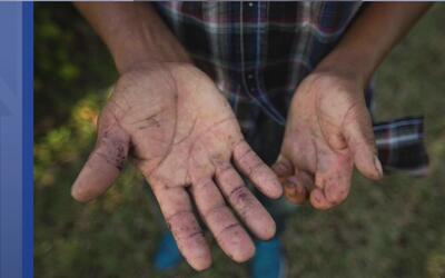 Las manos, evidencia de por qué los inmigrantes componen el 73 % de la f...