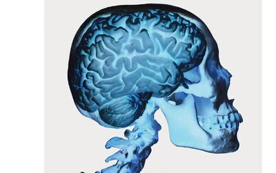 Los hispanos corren más riesgo de sufrir una parálisis cerebral, según e...