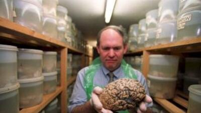 Algunos de los cerebros analizados fueron recogidos apenas unas horas de...