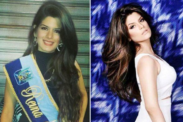 Miss Durán, Catherine Cando, falleció durante una cirugía plástica.
