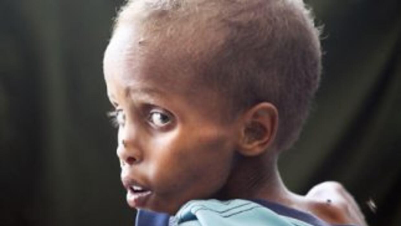 La ONU ha reiterado que existen casi 1,000 millones de personas con hamb...