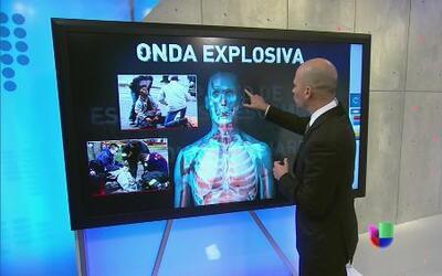 El doctor Juan Rivera nos explica los efectos de bombas como las que exp...