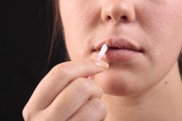 Los labios partidos son síntoma de una deficiencia de vitamina B....