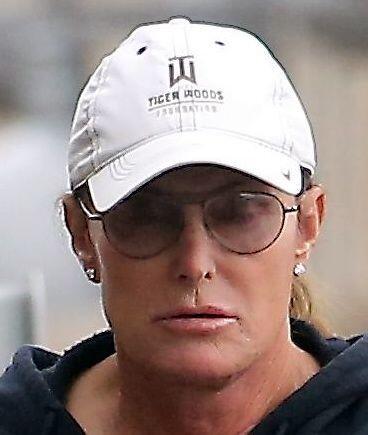 ¡Vean nada más la transformación facial del 'ex' marido de Kris Jenner!