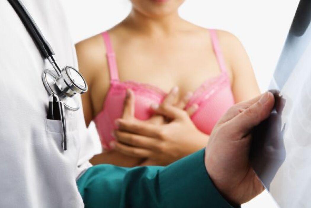 4-Consejería sobre la Quimioprofilaxis del Cáncer del Seno: Las mujeres...