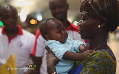 Bebé con cuatro piernas regresa a casa después de ser operada con éxito