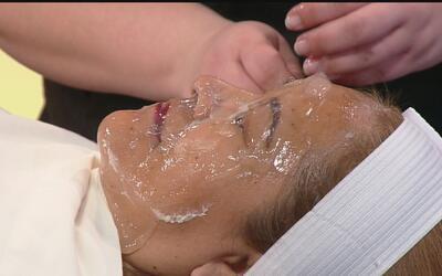 Remedios caseros para combatir los poros abiertos y mejorar el aspecto d...