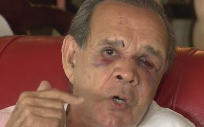 """Hombre a quien golpearon para robarle su auto en Shenandoah: """"Me pudo ha..."""