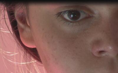 Conozca el caso de Brianna, la menor que tiene 'piel de mariposa'