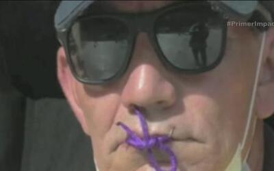 Desempleados se cosen la boca para captar la atención de defensores de d...