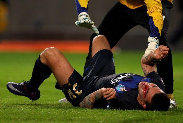 El defensor argentino Otamendi sufrió un terrible golpe en uno de sus oj...