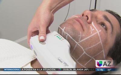Una terapia rejuvenecedora no invasiva