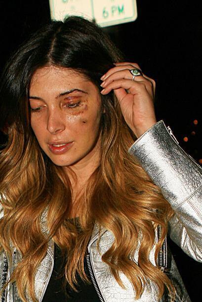 La joven de 31 años dijo que fue golpeada salvajemente y tuvo que...